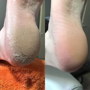 לפני ואחרי פדיקור רגליים